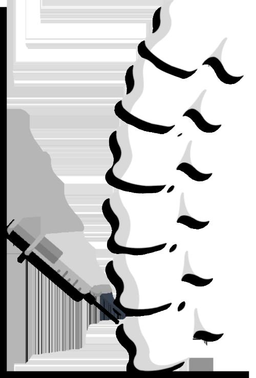Treatment involves Regional block / Spina