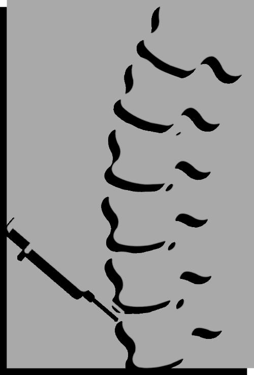Treatment does not involve Regional block / Spina
